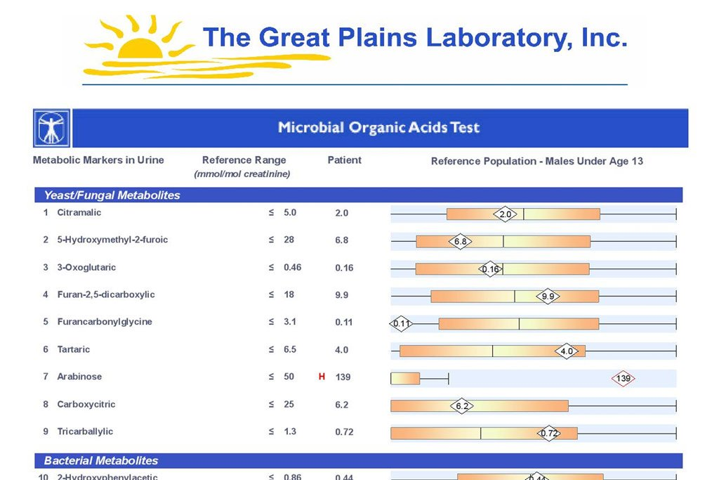 Organic Acids Test Sample Results